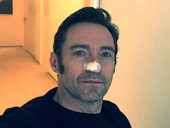 Hugh Jackman reveals that he is undergoing treatment for skin cancer
